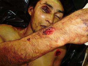 Ejecución y Tortura. Severiano.jpg