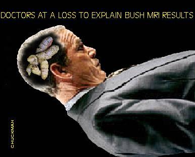 CHUCKMAN - BUSH - MRI RESULTS.jpg